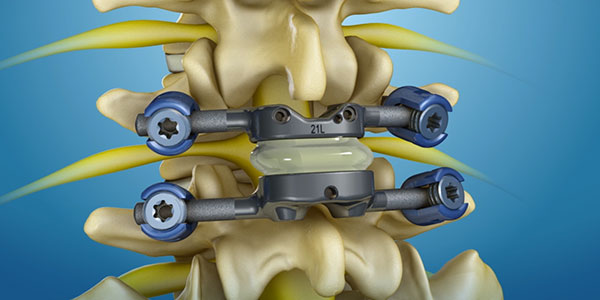 Spinal Stenosis Treatment Technology