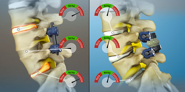 TOPS System Compared to Spinal Fusion