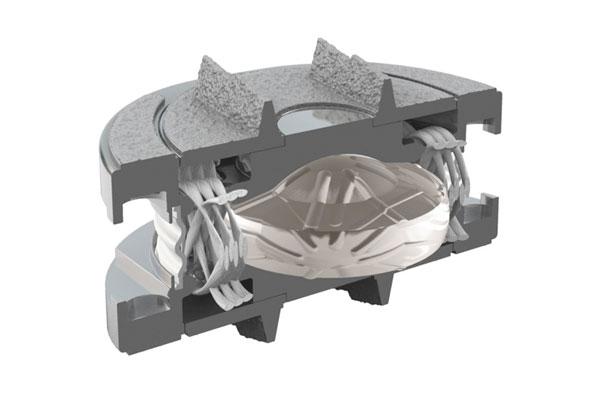 M6-L Artificial Lumbar Spine Implant