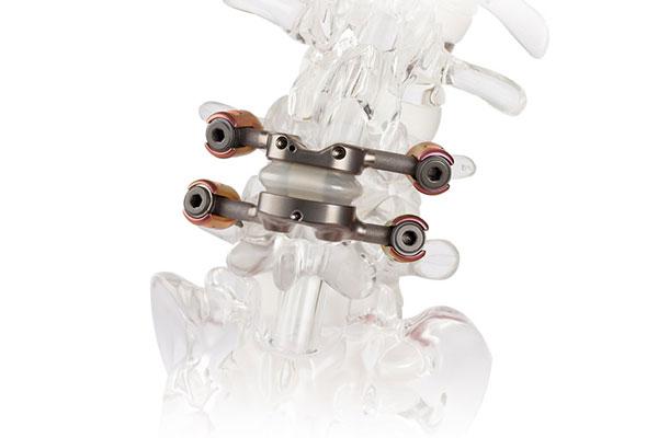 TOPS Lumbar Corpectomy Implant