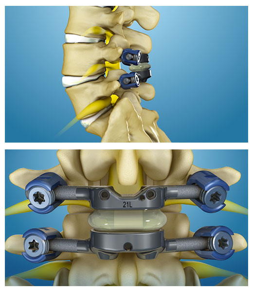 Spinal Stenosis Treatment - TOPS System