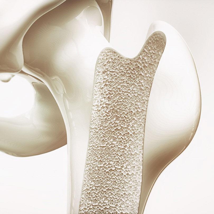 Surgical Bone
