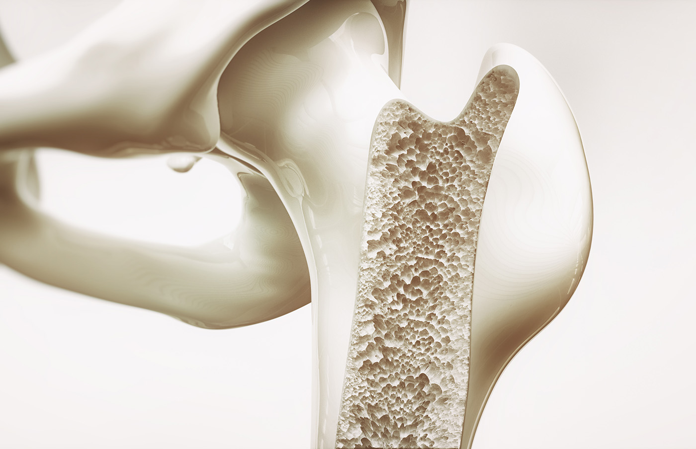 Demineralised Bone Matrix